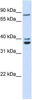 Western blot - C18orf10 antibody (ab83914)