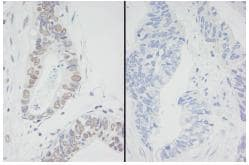 Immunohistochemistry (Formalin/PFA-fixed paraffin-embedded sections) - MCM2 (phospho S53) antibody (ab83969)