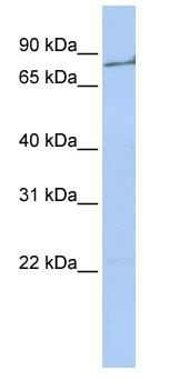 Western blot - Thrombin antibody (ab83981)