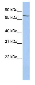 Western blot - SAMHD1 antibody (ab83982)