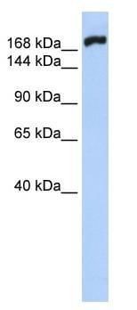 Western blot - Anti-non-muscle Myosin IIB antibody (ab83984)