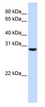 Western blot - C18orf10 antibody (ab83986)