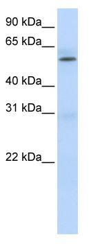Western blot - PRMT3 antibody (ab84202)