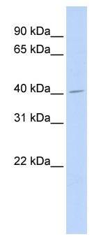 Western blot - ASAHL antibody (ab84285)