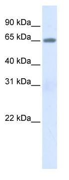 Western blot - Human Serum Albumin antibody (ab84348)