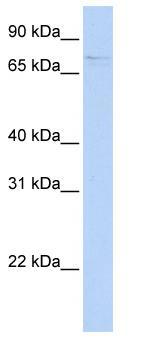 Western blot - FAM82A1 antibody (ab84351)