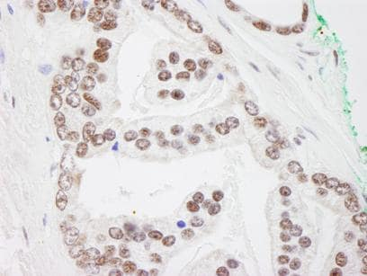 Immunohistochemistry (Formalin/PFA-fixed paraffin-embedded sections) - PRMT1 antibody (ab84361)