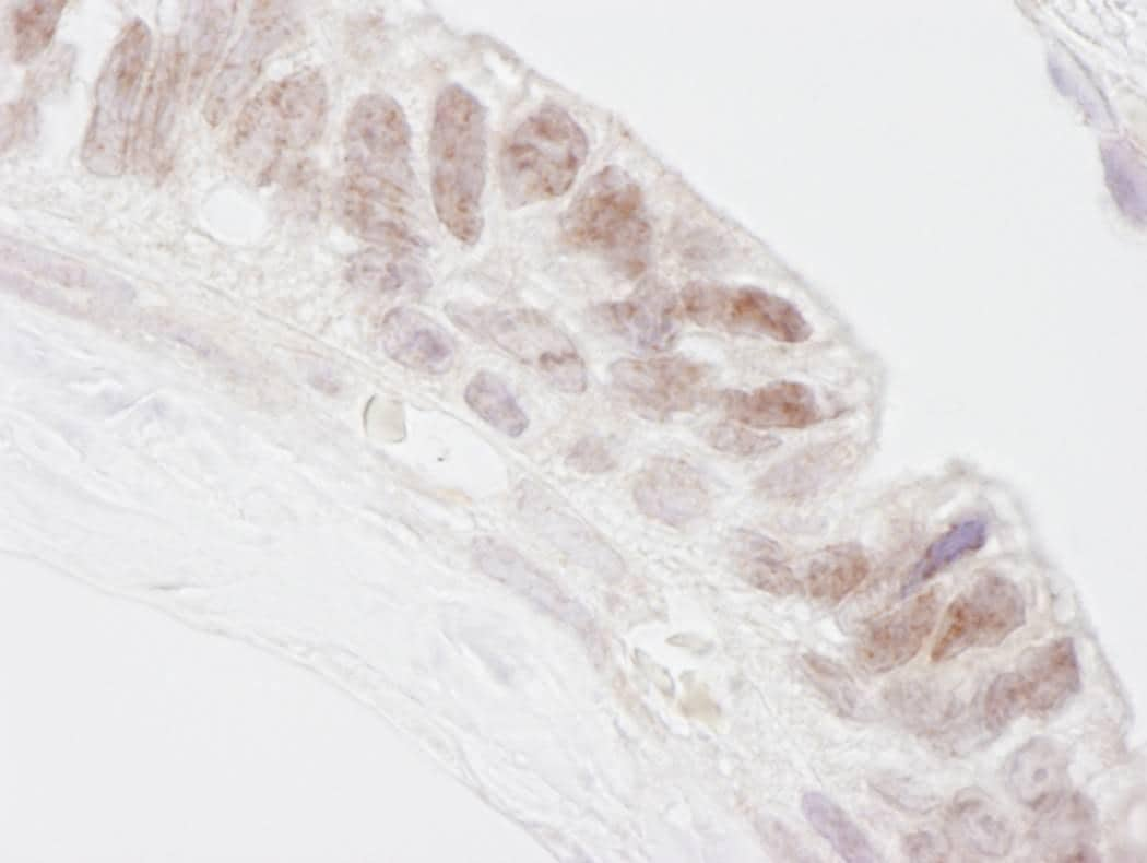 Immunohistochemistry (Formalin/PFA-fixed paraffin-embedded sections) - PNK antibody (ab84374)