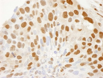 Immunohistochemistry (Formalin/PFA-fixed paraffin-embedded sections) - CRM1 antibody (ab84375)
