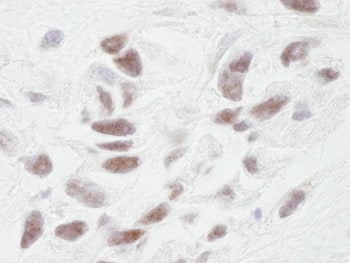 Immunohistochemistry (Formalin/PFA-fixed paraffin-embedded sections) - PPP1R10 antibody (ab84377)