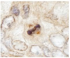 Immunohistochemistry (Formalin/PFA-fixed paraffin-embedded sections) - CENPF antibody (ab84697)