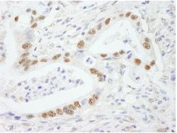 Immunohistochemistry (Formalin/PFA-fixed paraffin-embedded sections) - SF3B2 antibody (ab84699)