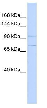 Western blot - SLC8A3 antibody (ab84708)