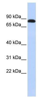 Western blot - Desmocollin 3 antibody (ab84709)