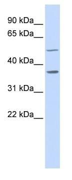 Western blot - ZADH1 antibody (ab84711)