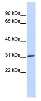 Western blot - ARD1A antibody (ab84715)