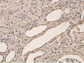 Immunohistochemistry (Formalin/PFA-fixed paraffin-embedded sections) - Aryl hydrocarbon Receptor  antibody (ab84833)