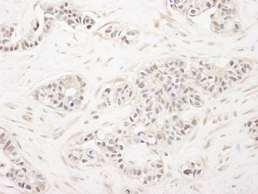 Immunohistochemistry (Formalin/PFA-fixed paraffin-embedded sections) - FOG1 antibody (ab84876)