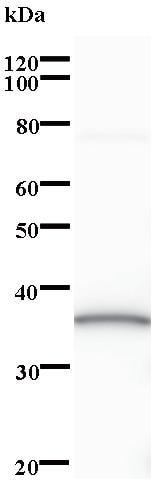 Western blot - Neugrin antibody [2634C2a] (ab84881)