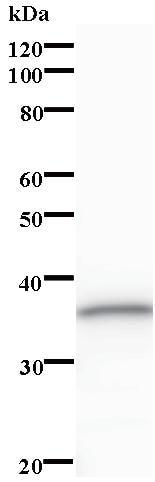 Western blot - Zmat2 antibody [3324C2a] (ab84886)