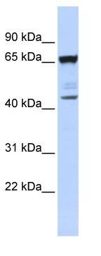 Western blot - SCML4 antibody (ab84929)