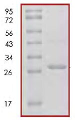 SDS-PAGE - 14-3-3 sigma protein (Human) (ab85271)
