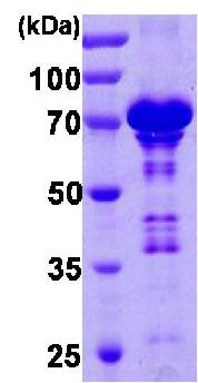 SDS-PAGE - Chromogranin A protein (His tag) (ab85486)