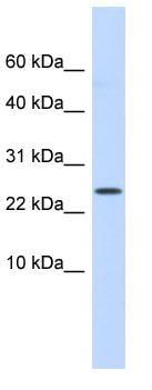 Western blot - LYPD6 antibody (ab85499)