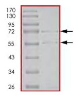 SDS-PAGE - CDK2 + CCNE1 protein (Active) (ab85639)