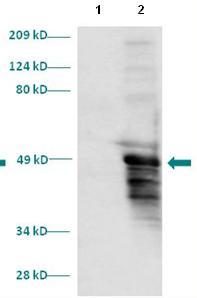 Western blot - HOXD13 antibody (ab86015)