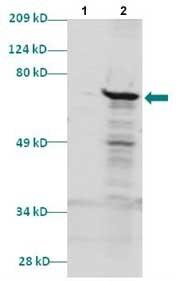 Western blot - MEIS2 antibody (ab86021)