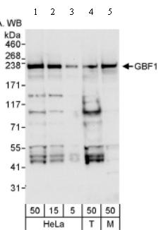 Western blot - GBF1 antibody (ab86071)