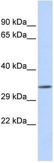 Western blot - TEX264 antibody (ab86117)