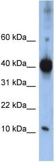 Western blot - LSM4 antibody (ab86205)