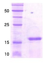 SDS-PAGE - CBF protein (His tag) (ab86217)