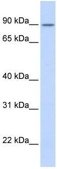 Western blot - ZNF408 antibody (ab86272)