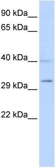 Western blot - SIRT5 antibody (ab86274)