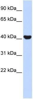 Western blot - NR2E1 / Tailless antibody (ab86276)