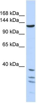 Western blot - Tankyrase antibody (ab86279)