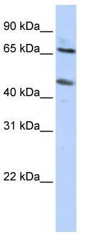 Western blot - SLC26A10 antibody (ab86347)