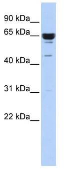 Western blot - ZNF587 antibody (ab86348)