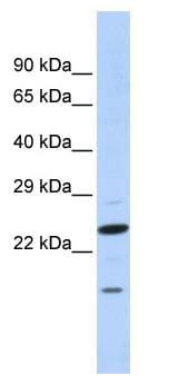 Western blot - Insig2 antibody (ab86351)