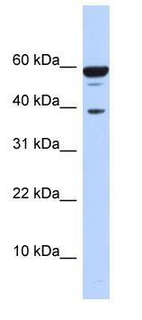 Western blot - NIPP1 antibody (ab86352)