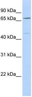 Western blot - KLHL15 antibody (ab86448)
