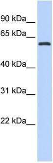 Western blot - DRIL1 antibody (ab86500)