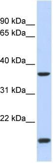 Western blot - ZIC4 antibody (ab86614)