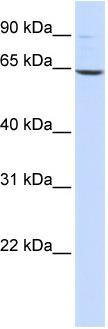 Western blot - Leukotriene A4 hydrolase antibody (ab86760)