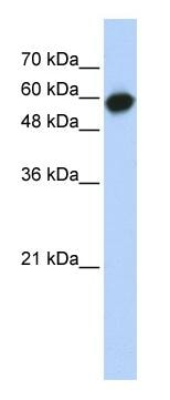 Western blot - LRRC6 antibody (ab86984)