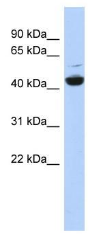 Western blot - TP6V1C1 antibody (ab87163)