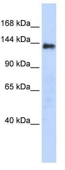 Western blot - DENND2C antibody (ab87164)